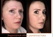 Пластический хирург Александр Тимошенко. Фото пациентки до и после эндоскопической подтяжки лба и ринопластики