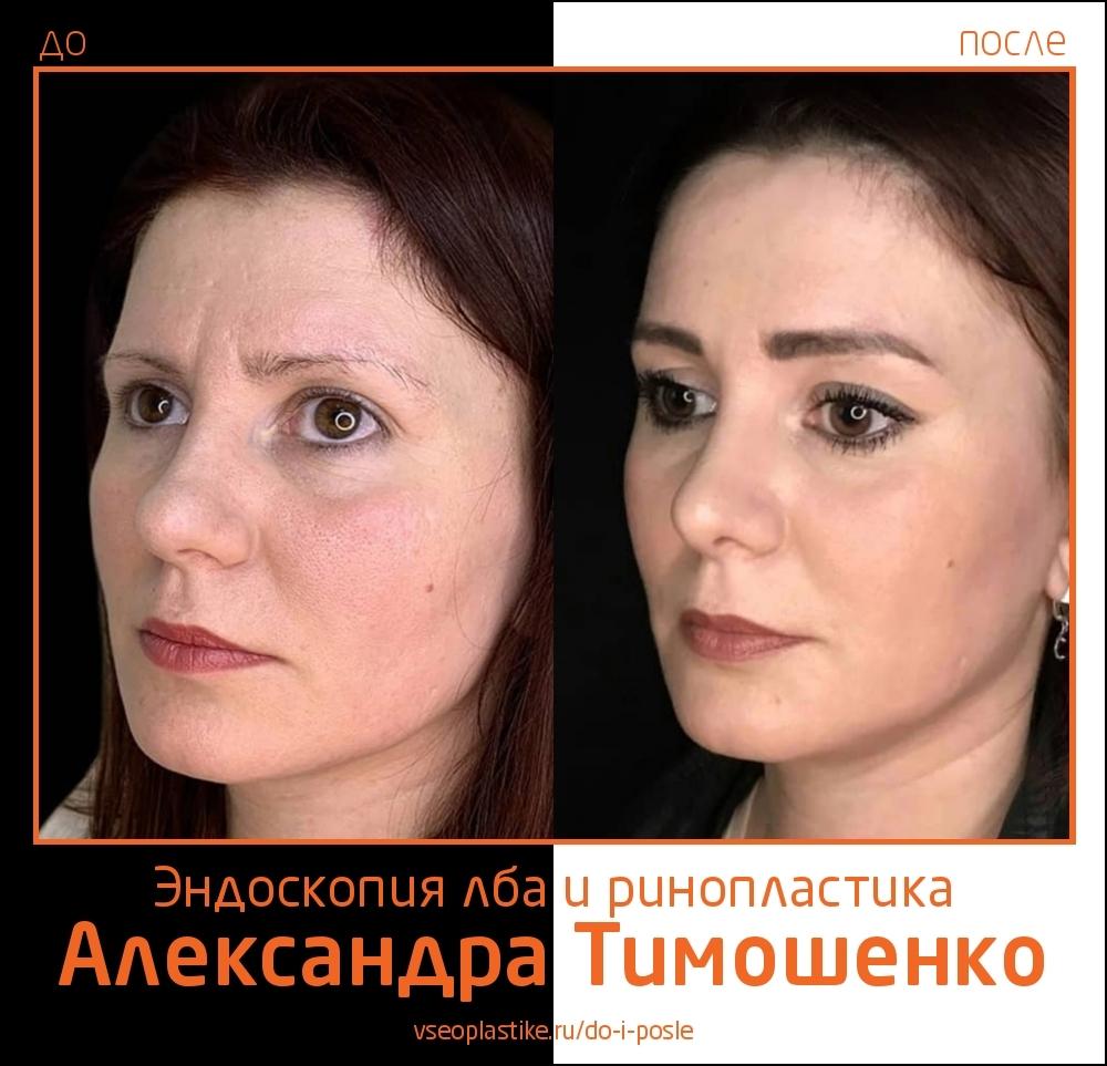 Александр Тимошенко. Фото до и после эндоскопической подтяжки лба и ринопластики