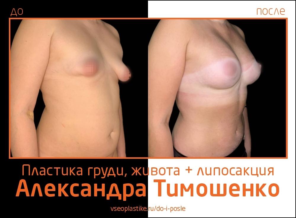 Доктор Александр Тимошенко. Фото пациентки до и после пластики живота и груди и липосакции