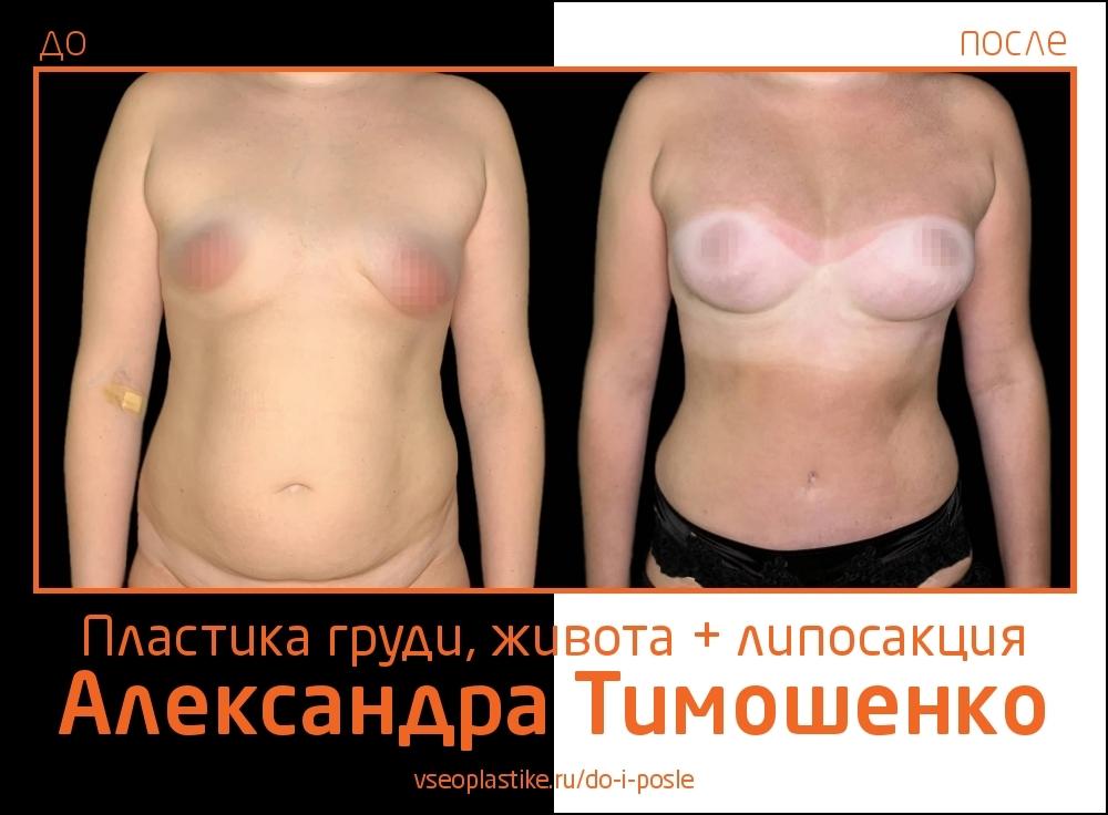 Пластический хирург Александр Тимошенко. Фото до и после пластики живота и груди и липосакции