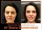 Пластический хирург Ольга Ованесова. Фото пациентки до и после тотального омоложения лица