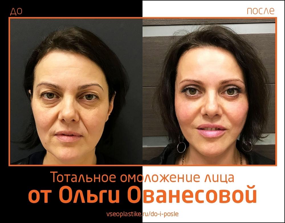 Пластический хирург Ольга Ованесова. Фото до и после тотального омоложения лица