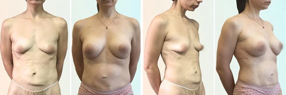 Увеличение груди со скидкой Дмитрий Рябцев