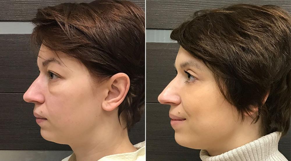 Фото до и после круговой блефаропластики у Ольги Ованесовой