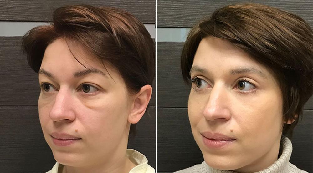 Фото пациентки до и после круговой блефаропластики у Ольги Ованесовой