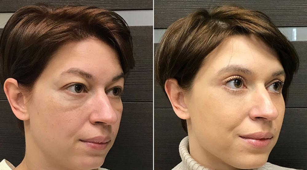 До и после круговой блефаропластики и липомоделирования лица у Ольги Ованесовой