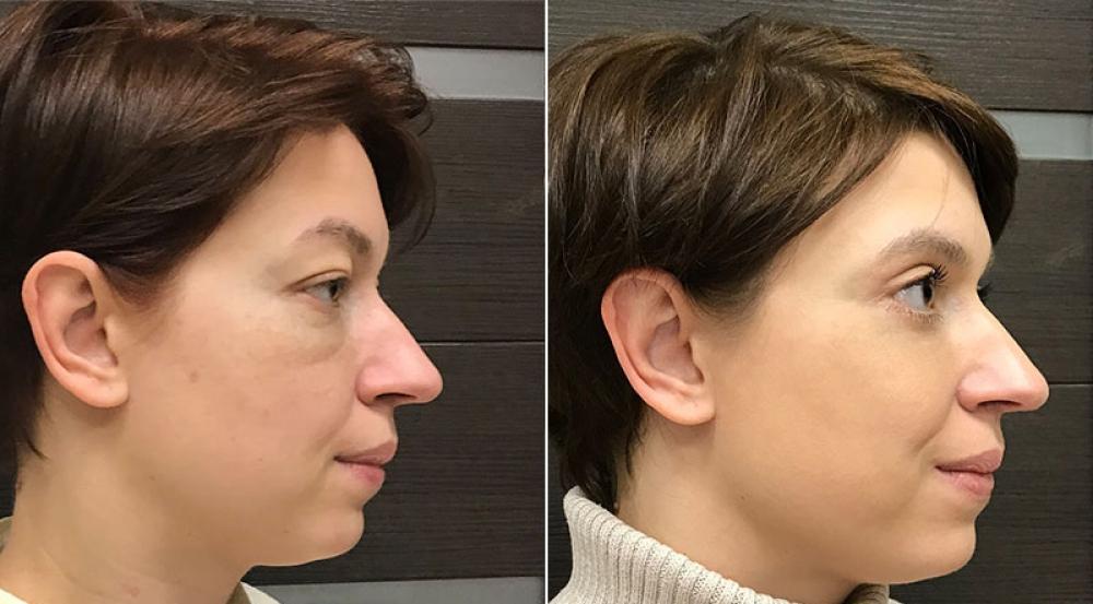 До и после круговой блефаропластики и липомоделирования маляров у Ольги Ованесовой