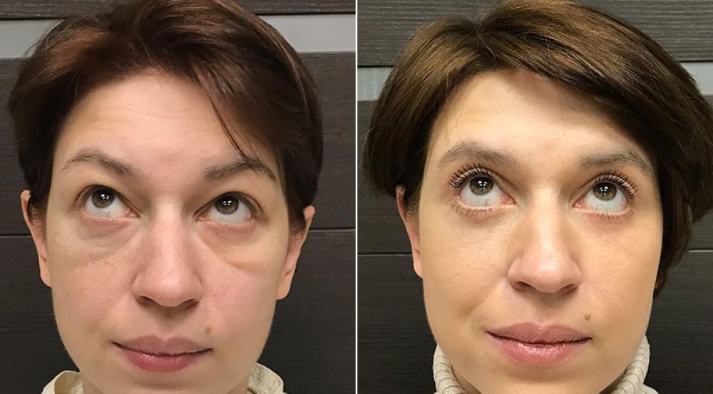 До и после круговой блефаропластики и липомоделирования лица у доктора Ованесовой