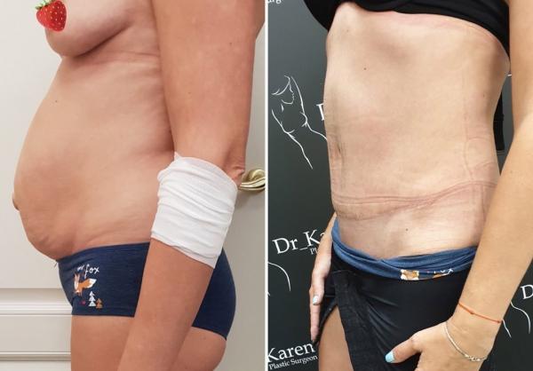 Фото пациентки до и после абдоминопластики у пластического хирурга Карена Пайтяна
