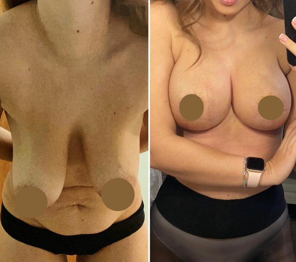 Фото груди до и после маммопластики у пластического хирурга Дмитрия Мельникова