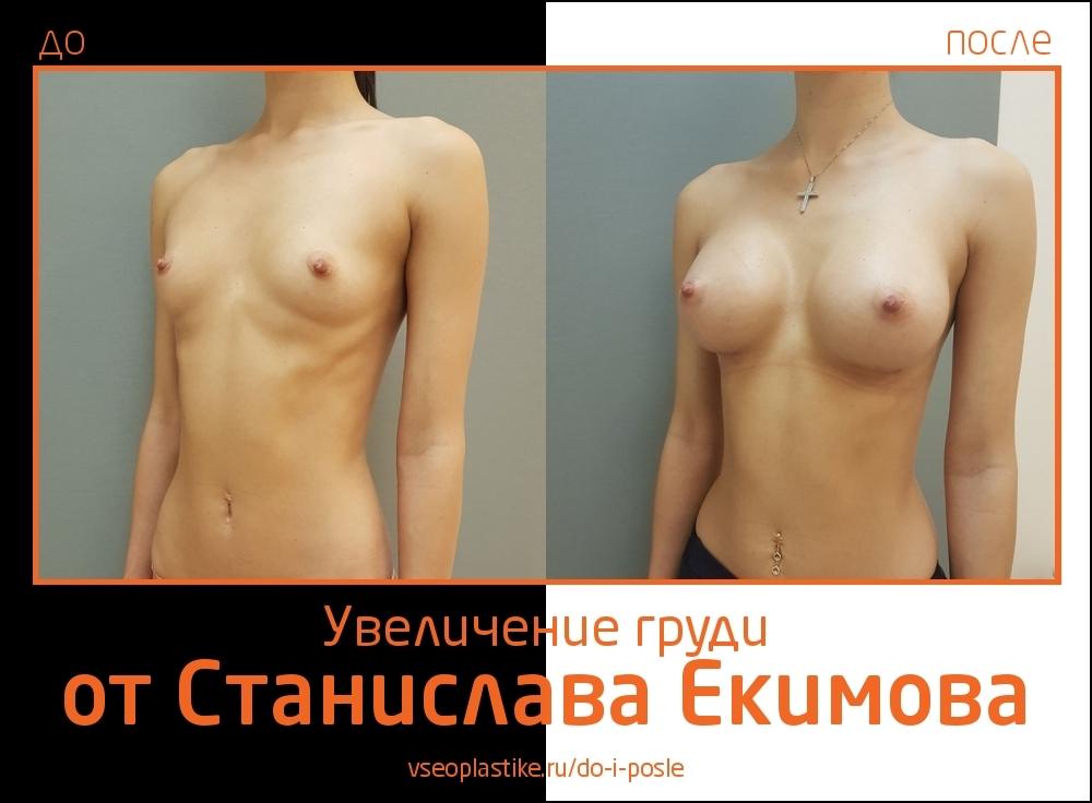 Станислав Екимов. Фото до и после увеличения груди