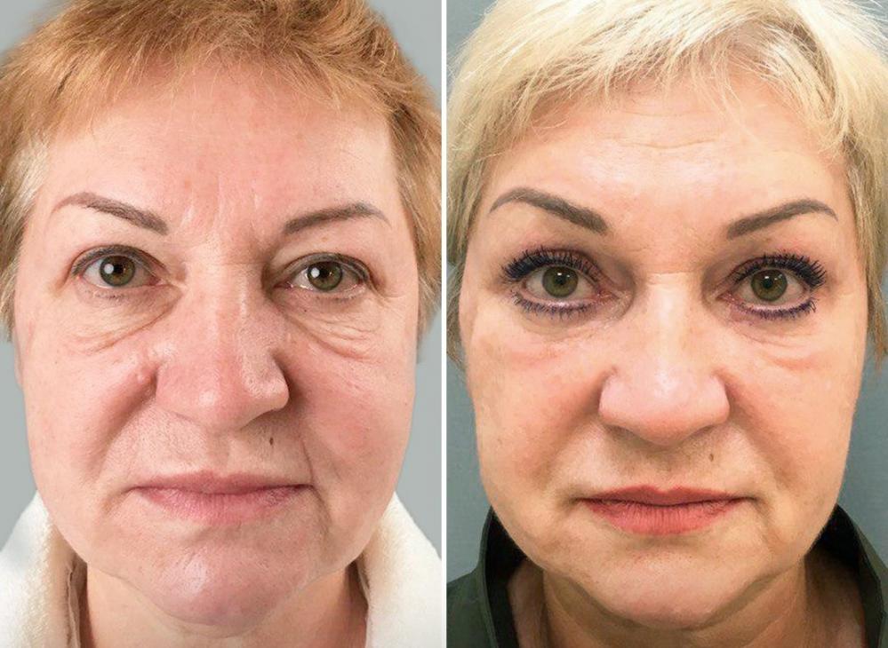 Пациентка доктора М.А. Четвериковой до и через 6 месяцев после эндоскопической периорбитопластики