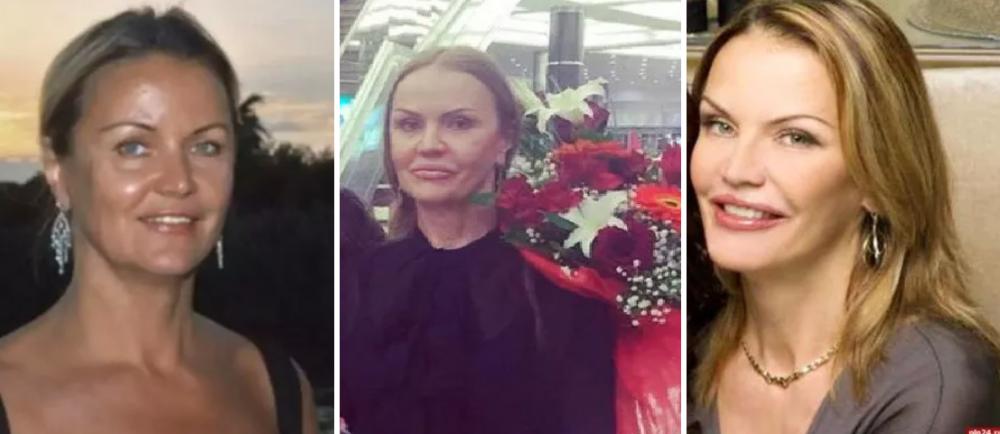 Мать Оксаны Федоровой до и после пластики лица