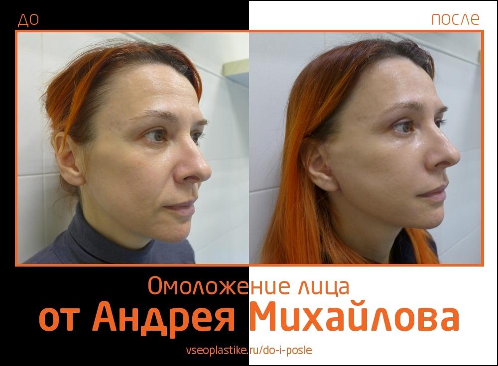 Доктор Андрей Михайлов. Фото пациентки до и после омоложения лица и шеи