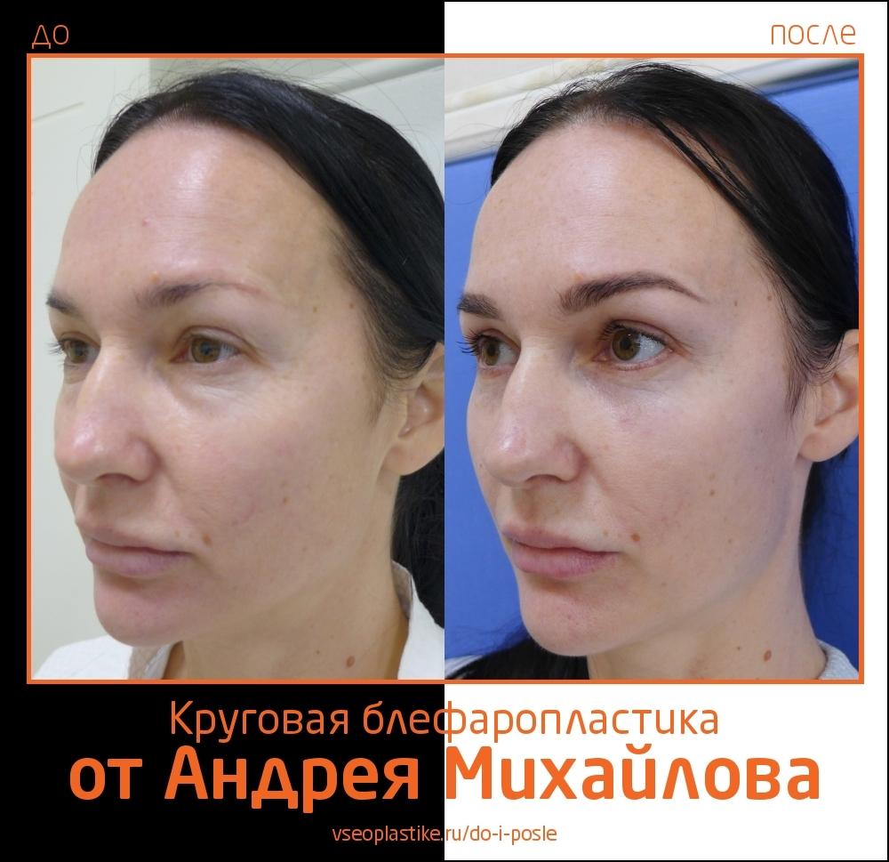 Пациентка доктора Михайлова до и после круговой блефаропластики