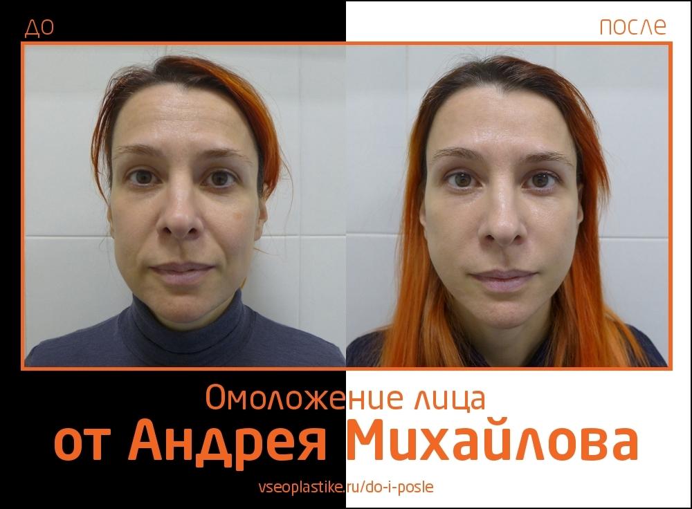 Андрей Михайлов. Фото пациентки до и после омоложения лица и шеи
