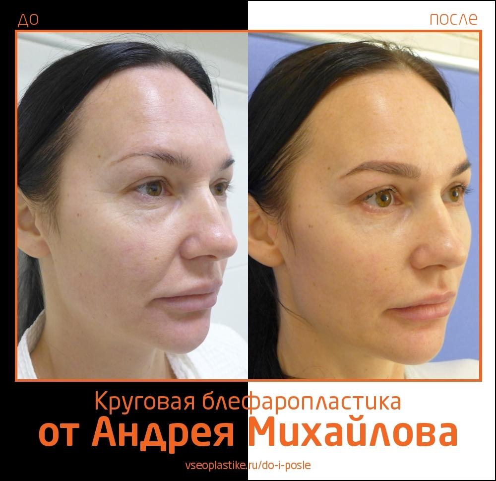 Пациентка доктора Андрея Михайлова до и после нижней и верхней блефаропластики
