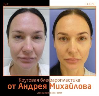 Пациентка доктора Андрея Михайлова до и после круговой блефаропластики