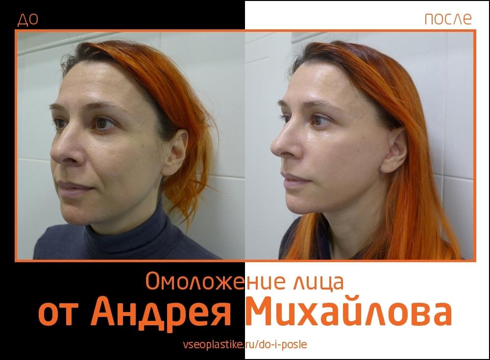 Андрей Михайлов. Пациентка до и после омоложения лица и шеи