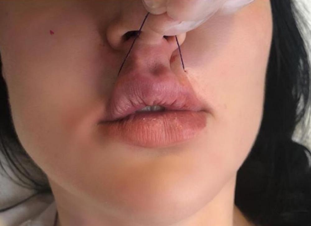 Пластику губ предлагают сделать при помощи нитей