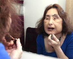 Умерла первая в США пациентка с пересаженным лицом