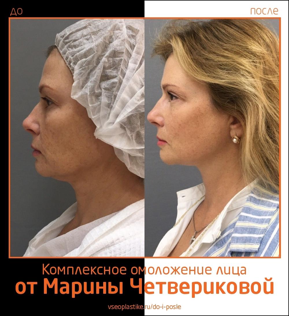 Марина Четверикова подтяжка лица