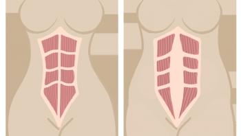 Мышцы живота до и после беременности