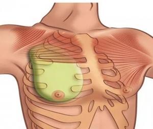 3D-моделирование импланта для реконструкции груди при синдроме Поланда