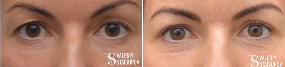 Пациентка пластического хирурга Валерия Стайсупова до и после верхней блефаропластики