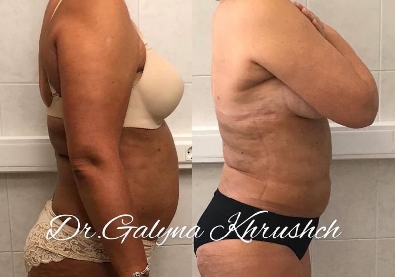 Фото пациентки до и после липосакции у пластического хирурга Галины Хрущ