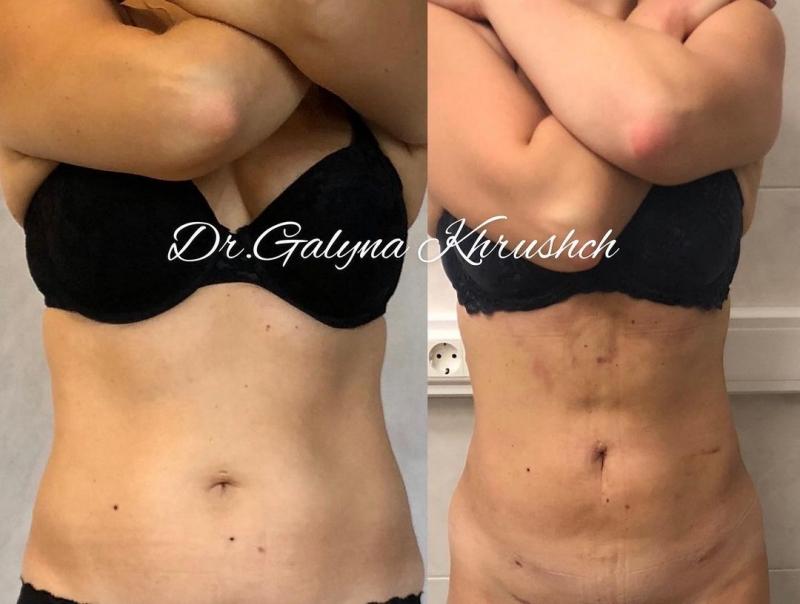 Фото до и после липосакции живота и боков у пластического хирурга Галины Хрущ