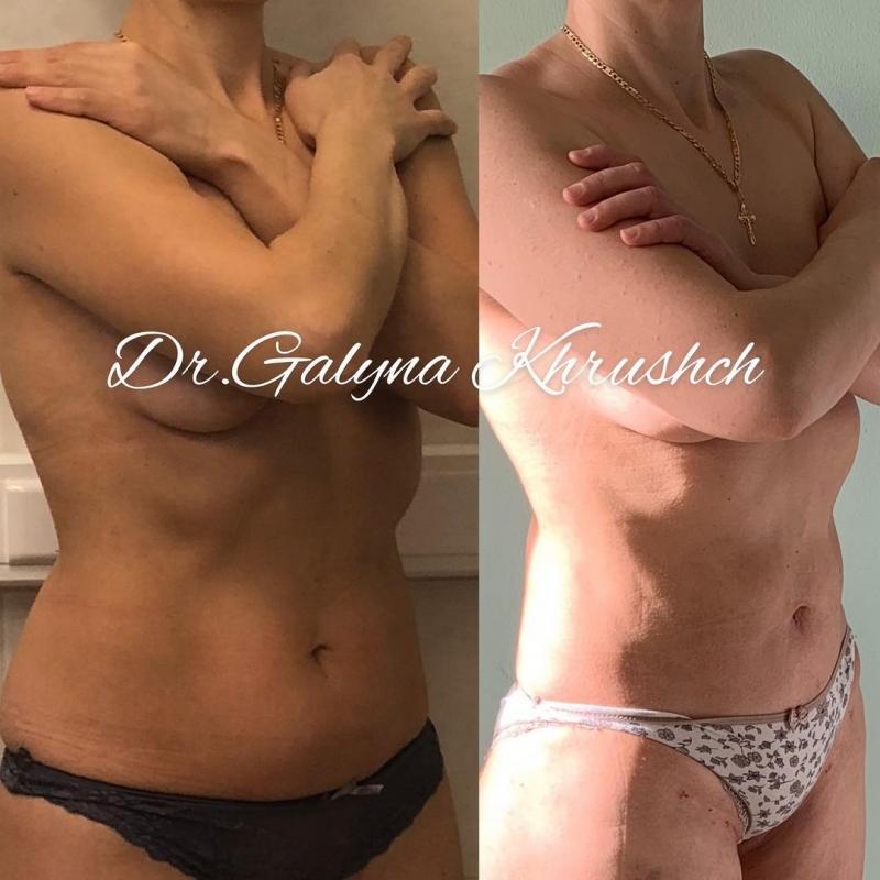 Фото до и после липосакции у пластического хирурга Галины Хрущ