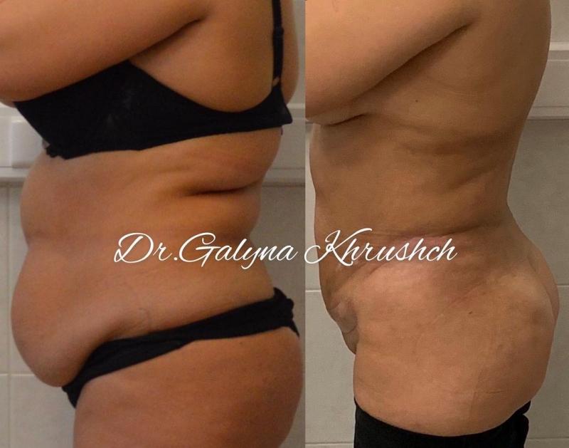 Снимок до и после липосакции у доктора Галины Хрущ