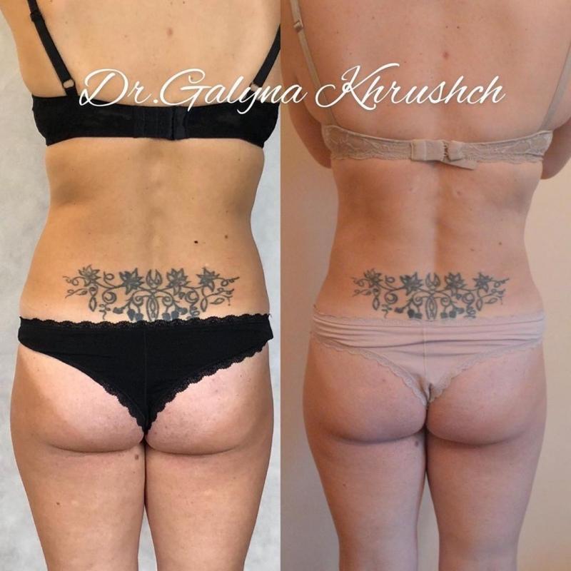 Пациентка до и после липосакции у доктора Галины Хрущ