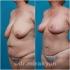 Гукас Миракян. Якорная подтяжка груди с увеличением и абдоминопластика, липосакция живота и боков