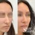 Валерий Стайсупов. Ринопластика носа с толстой кожей