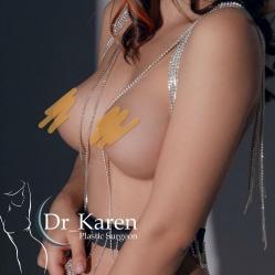 От мысли до операции 8 лет: моя история увеличения груди