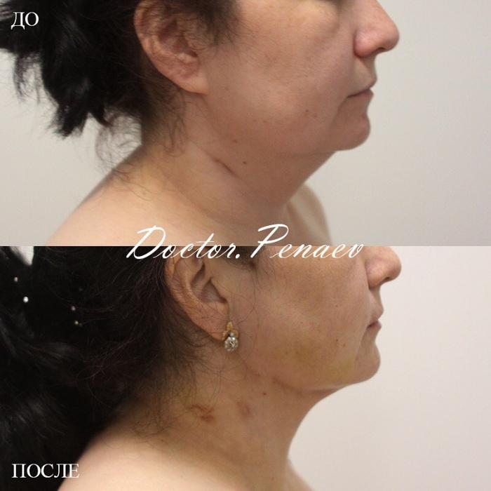 Пациентка до и после VASER-липомоделирования подбородочной области и шеи