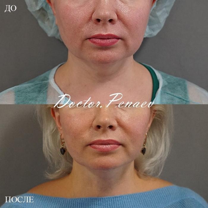 Пациентка до и после S-лифтинга со SMAS-подтяжкой и ультразвуковой диссекцией тканей лица