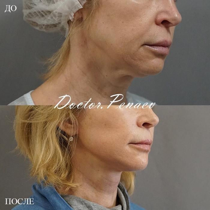 Пациентка до и после SMAS-подтяжки и ультразвуковой диссекцией тканей лица