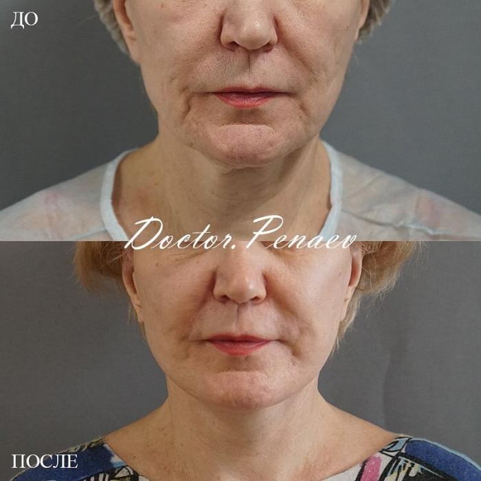Фото пациентки до и после SMAS-подтяжки и ультразвуковой диссекцией тканей лица