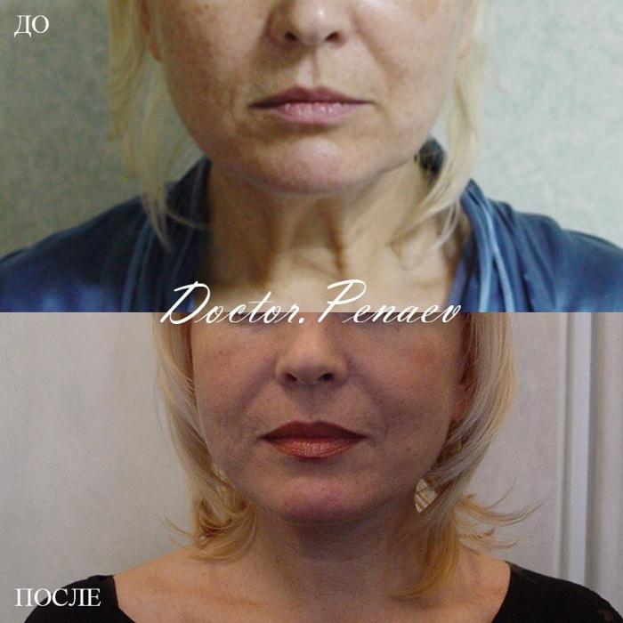 Фотографии пациентки до и после омоложения лица у доктора Арслана Пенаева