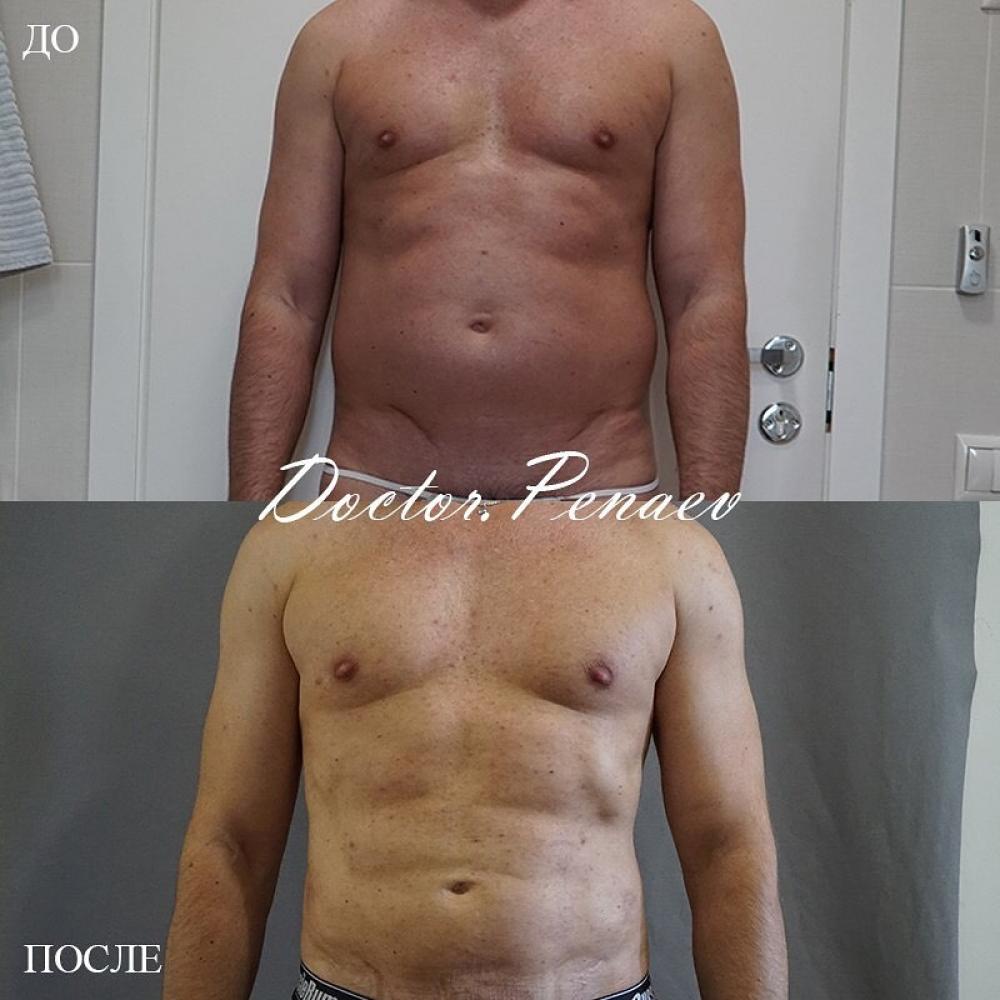 Пациент до и после VASER-липосакции тела