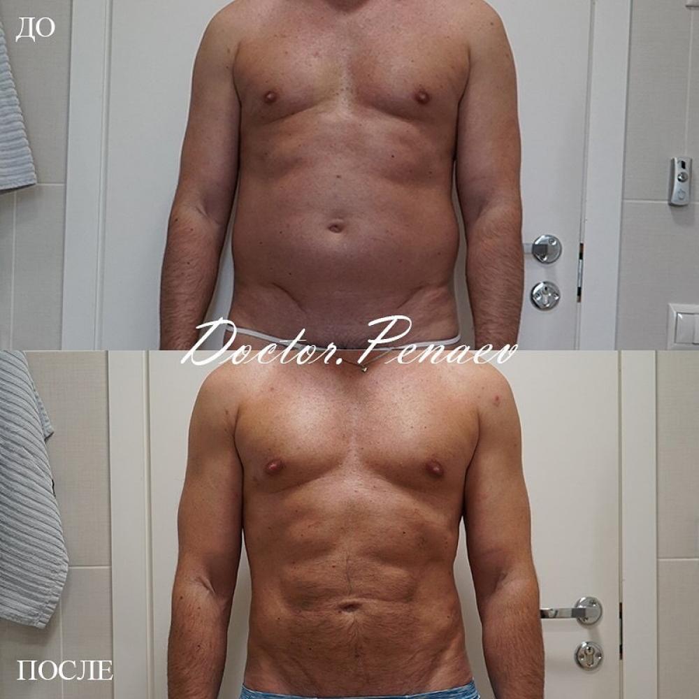 Пациент до и после VASER-липосакции тела через 6 месяцев