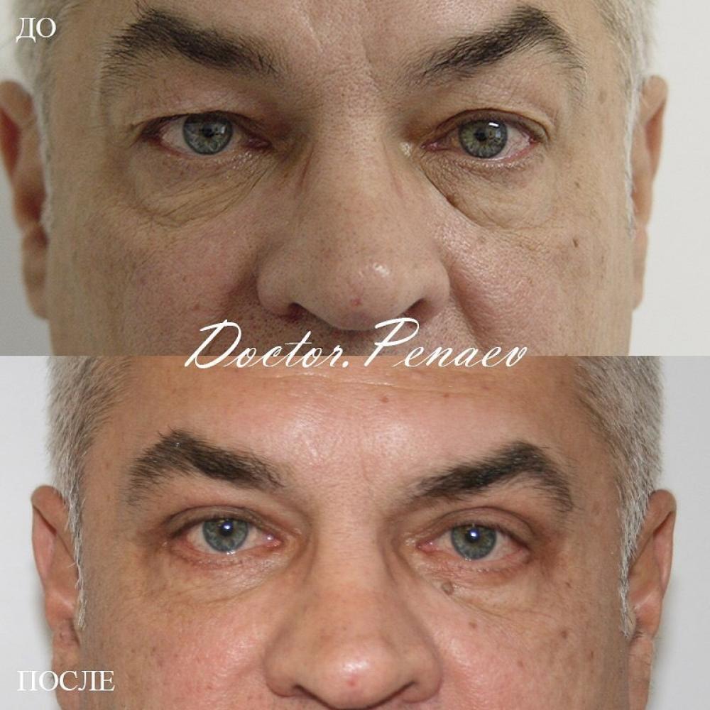 Пациент до и после круговой блефаропластики