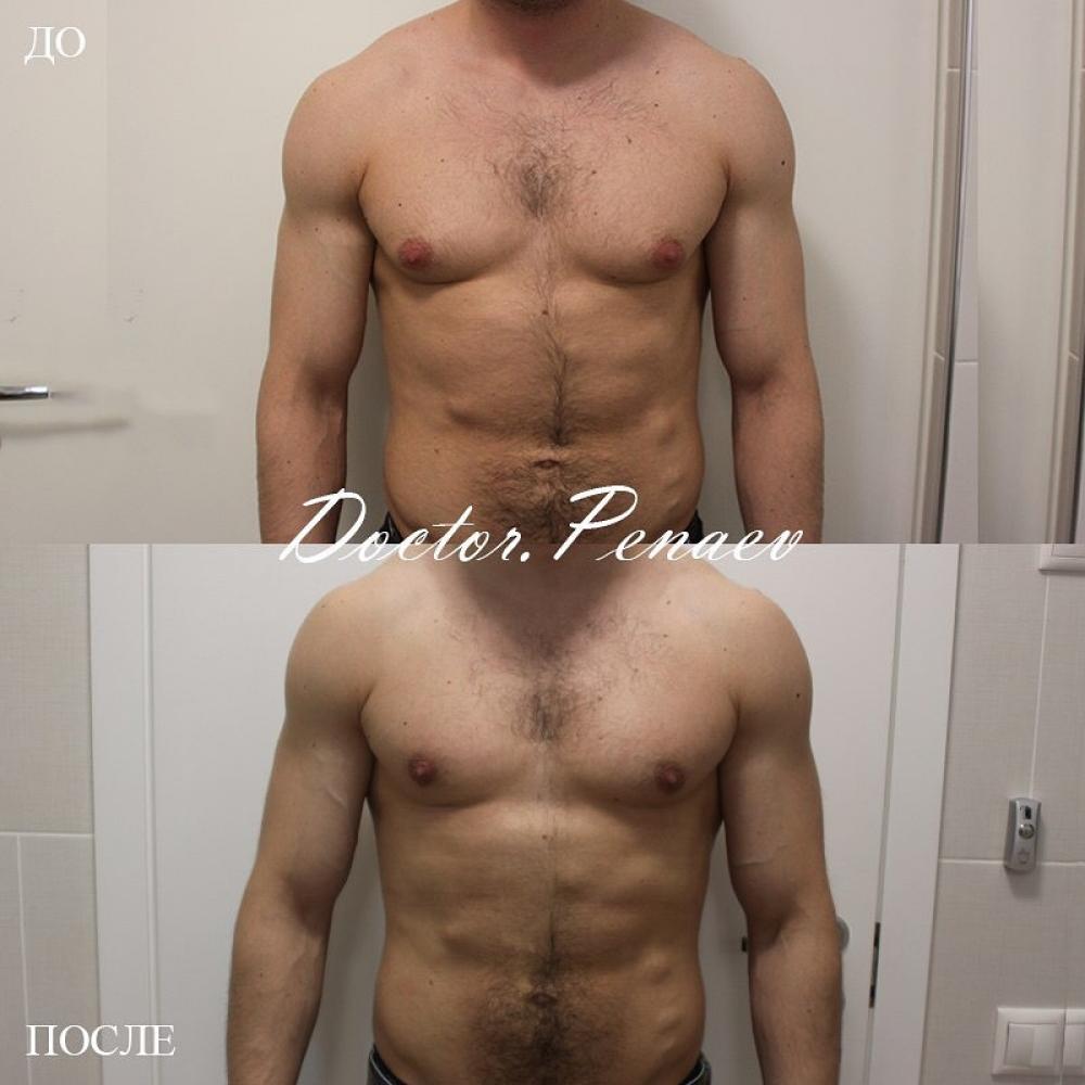 Пациент до и после устранения гинекомастии