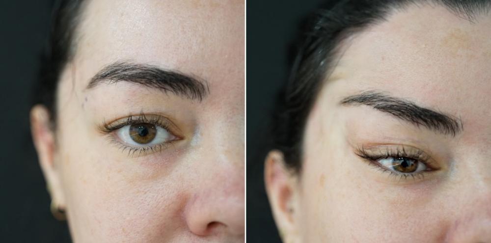 Фото до и после нитевой подтяжки Лисий взгляд