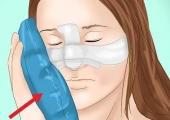 Как скрыть синяки после пластической операции?