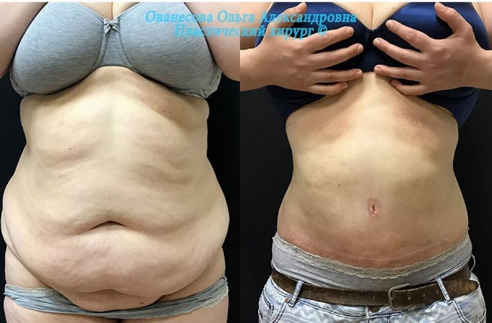 Пациентка доктора Ованесовой до и после подтяжки живота