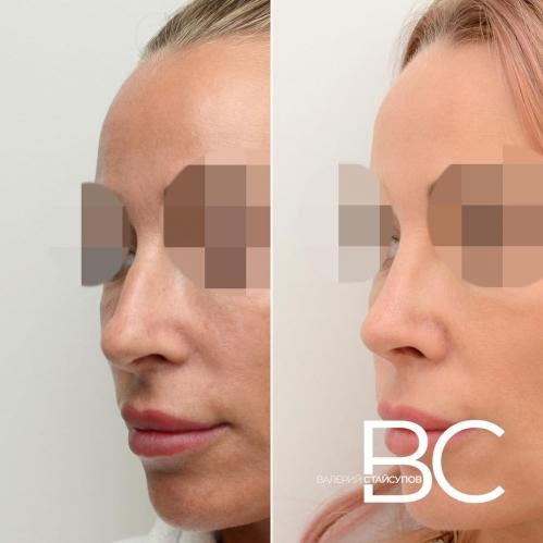 Фото пациентки до и после закрытой ринопластики у Валерия Стайсупова